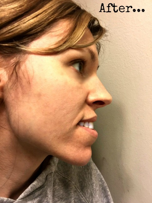Proactiv- After